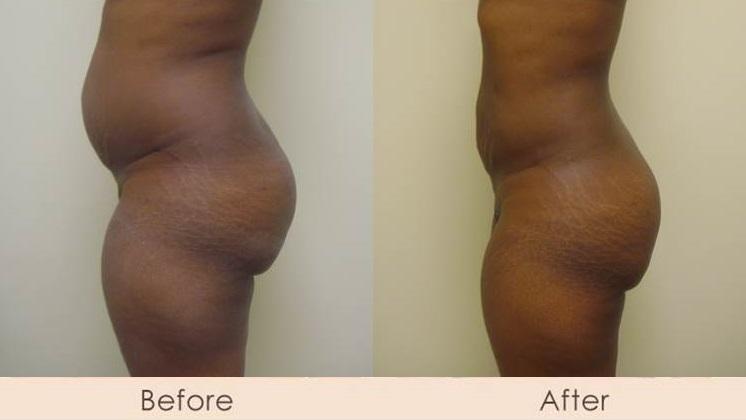 External Ultrasonic Liposuction of Abdomen, Waist, & Hips with Smart Lipo MPX to Full Abdomen