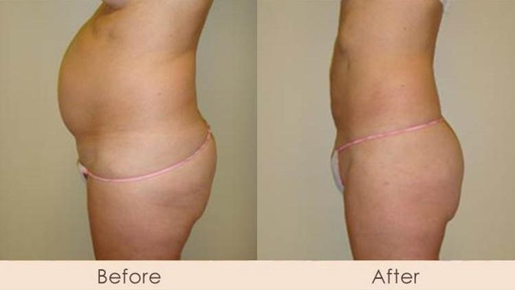 External Ultrasonic Liposuction of Abdomen