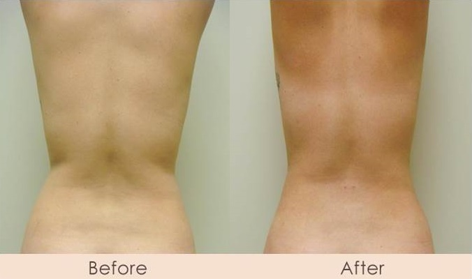 External Ultrasonic Liposuction of Waist