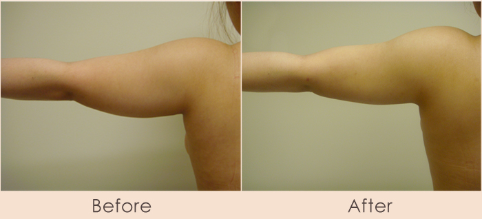 External Ultrasonic Liposuction and Smart MPX of Arms and Side of Arms