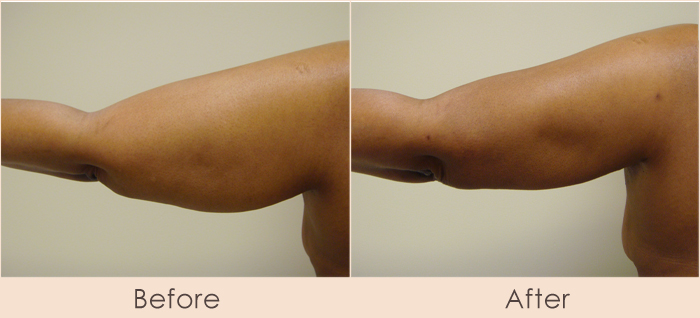 External Ultrasonic Liposuction of Arms