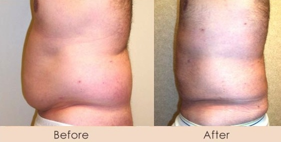 Male External Ultrasonic Liposuction of Abdomen and Waist