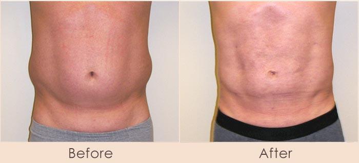 Male External Ultrasonic Liposuction of Abdomen and Waist