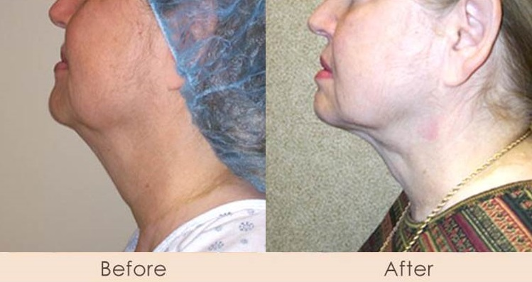 External Ultrasonic Liposuction of Neck