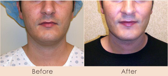 External Ultrasonic Liposuction and Smart Lipo MPX to Neck/Cheeks
