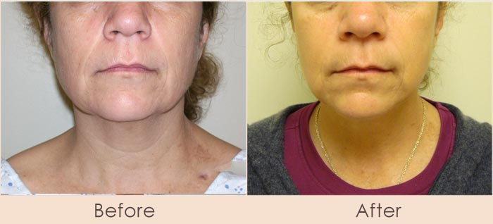 External Ultrasonic Liposuction and Smart Lipo MPX to Neck