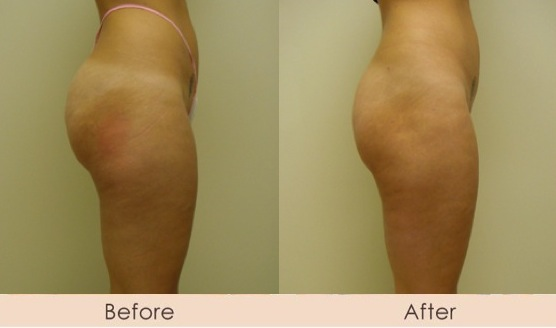 Liposuction of Outer Thighs and Buttocks