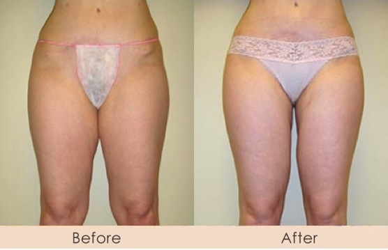 Liposuction of Inner Thighs with Smart Lipo MPX Inner Thighs