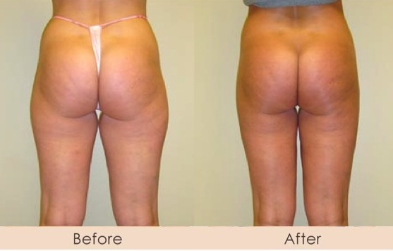 Liposuction of Inner and Outer Thighs
