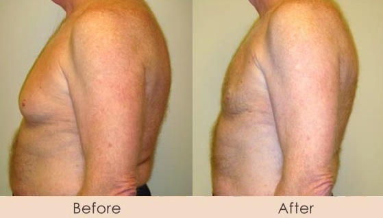 Male Liposuction of Chest