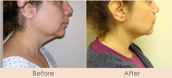 External Ultrasonic Liposuction and Smart Lipo MPX to Neck