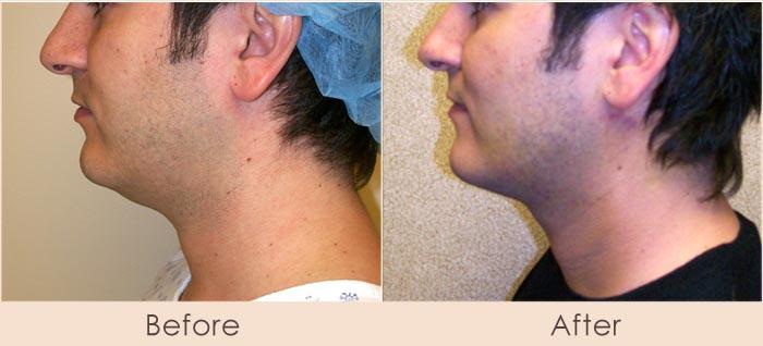 External Ultrasonic Liposuction and Smart Lipo MPX to Neck/Cheeks