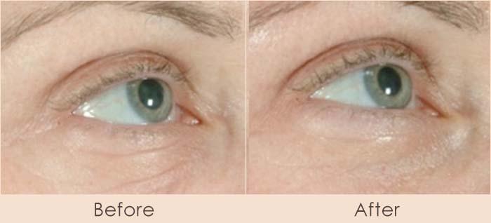 Pearl Laser Treatment