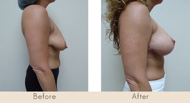Breast Lift with Scarless Breast Implants, 275cc – 315cc Under Muscle