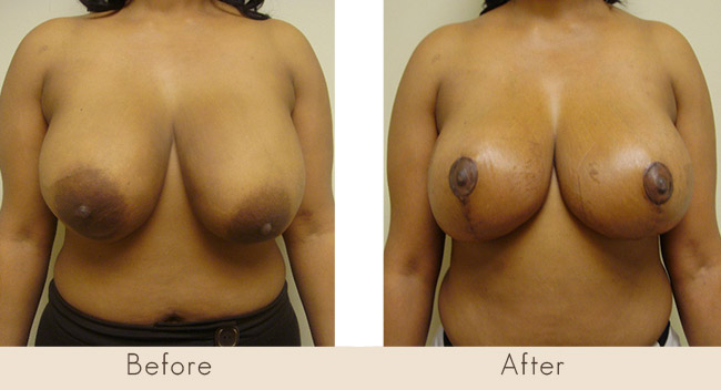 Mastopexy with Breast Implants – Saline – Left 300cc-340cc Right 300cc-310cc Under Muscle