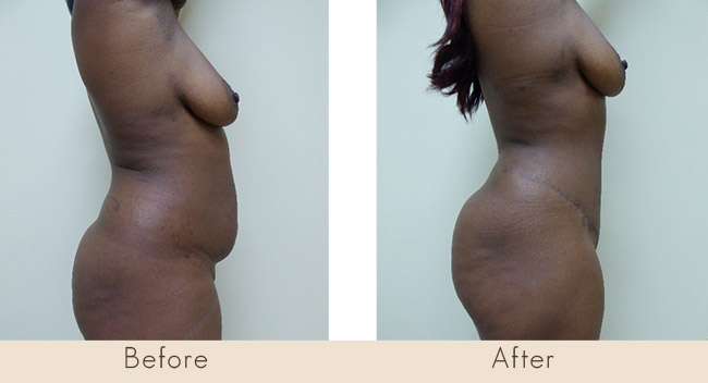 Hourglass Tummy Tuck – 6 Weeks Post Surgery