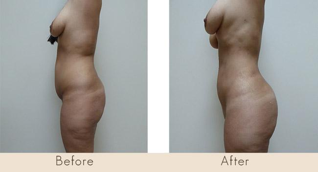 Fat Transfer to Buttocks