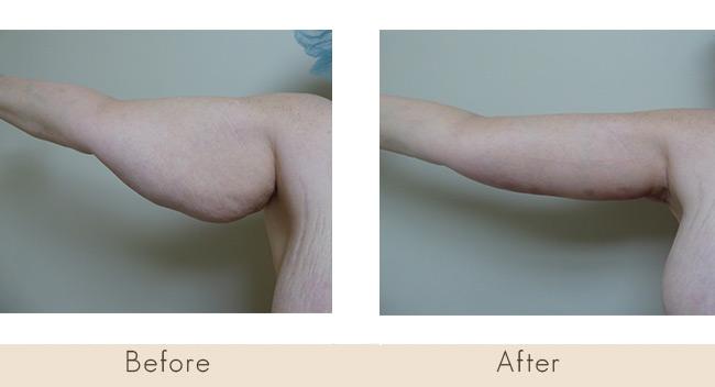 Arm Tuck 6 weeks post surgery