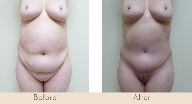 Hourglass Tummy Tuck - 11 Weeks Post Surgery