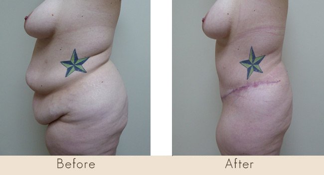 Hourglass Tummy Tuck