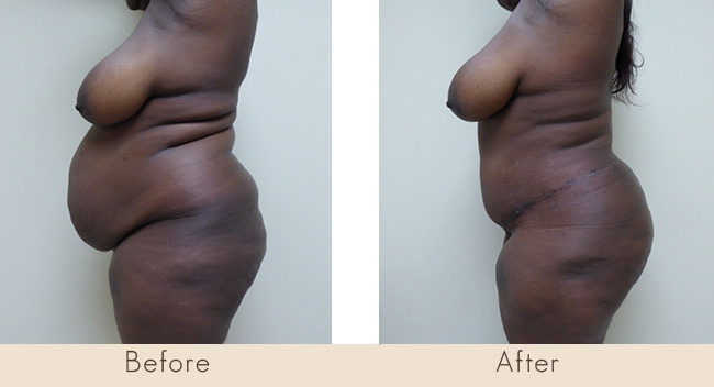 Hourglass Tummy Tuck - 4 Weeks Post Surgery