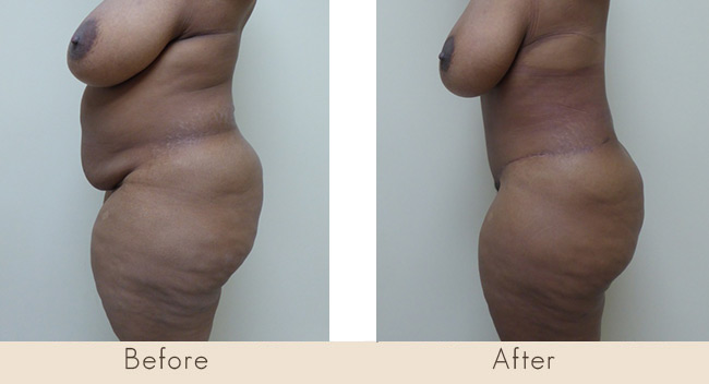 Hourglass Tummy Tuck - 6 Weeks Post Surgery