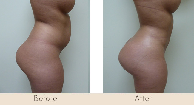 Lipo of Abdomen and Waist / Fat Transfer to Buttocks 6 Weeks Post Surgery