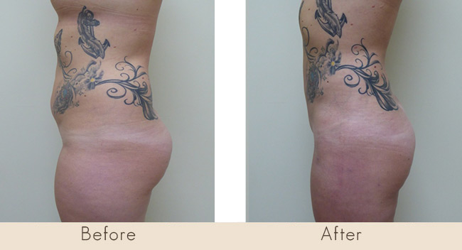 Liposuction of Thighs / Full Abdomen and Waist 7 Weeks Post Surgery