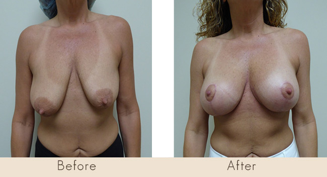 Mastopexy & Silicone Implants under the muscle