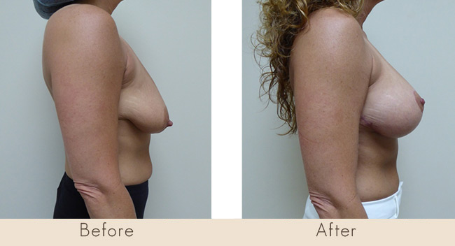 Mastopexy & Silicone Implants Left Implant 300cc Right Implant 255cc under the muscle