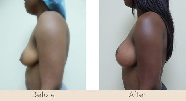 Mastopexy & Silicone Implants 300cc over the muscle