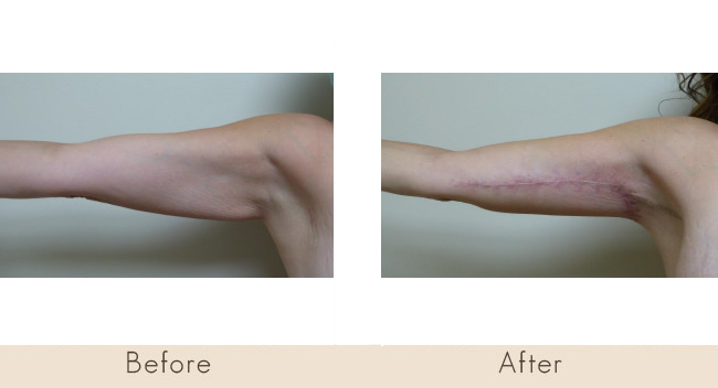 Horizontal and Vertical inner arm tuck 6 weeks post surgery
