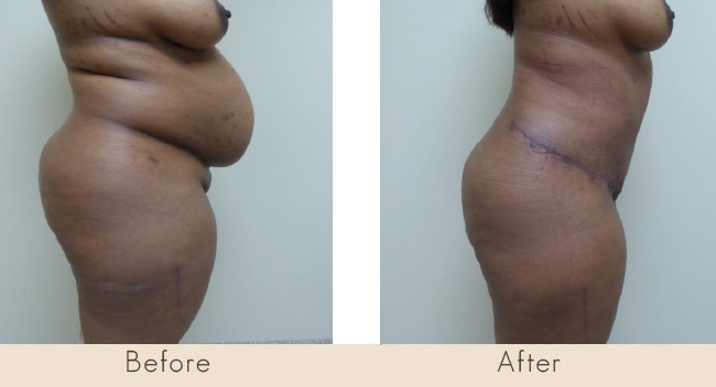 Hour Glass Tummy Tuck 7 weeks post surgery