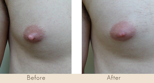 Male Nipple Reduction 6 Weeks Post Surgery