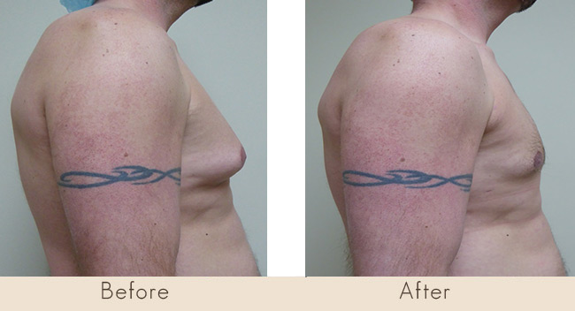 (EUAL) Liposuction & MPX Smart Lipo Male Chest