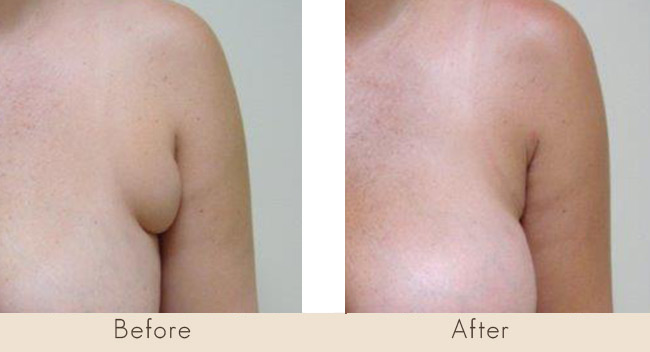 Liposuction to Axilla