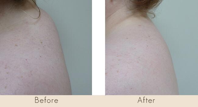 External Ultrasonic Liposuction of Buffalo Hump (8 weeks post surgery)