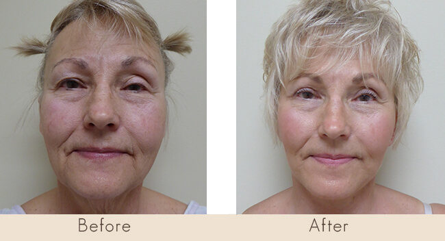 6 weeks post surgery Facelift with Liposuctin to Neck, and right side only Upper Lid Bleph with Lateral Fat Only