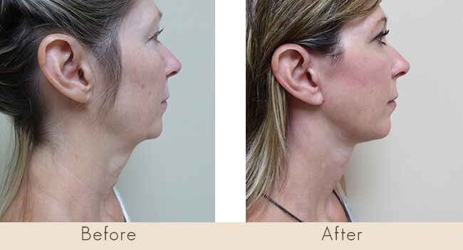 Facelift with Liposuction to neck and Transconjbleph with CO2 Laser Lower lids with Upper Lid Bleph