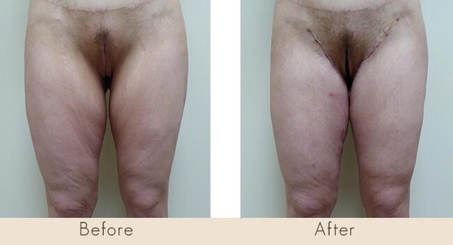 2½ Week Post Surgery Horizontal & Vertical Thigh Tuck