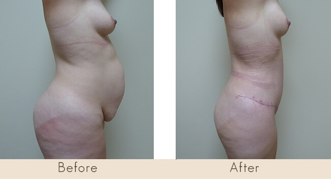 Hour Glass Tummy Tuck 6 Weeks Post Surgery