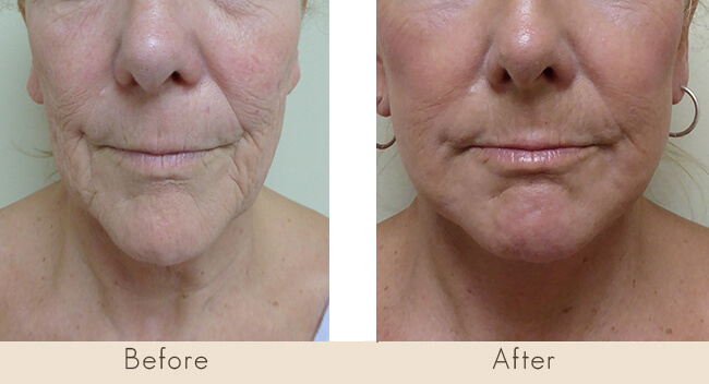 CO2 Repair to Cheeks & Perioral