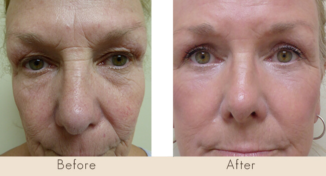 CO2 Repair to Cheeks, CO2 Laser Rest of Face, Upper Lid Bleph