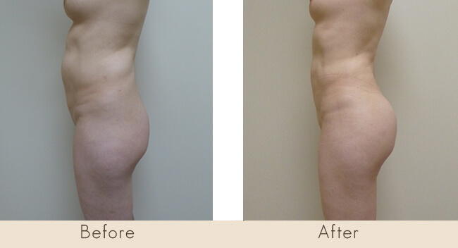 Liposuction of Waist and Hip / Fat Transfer to Buttock