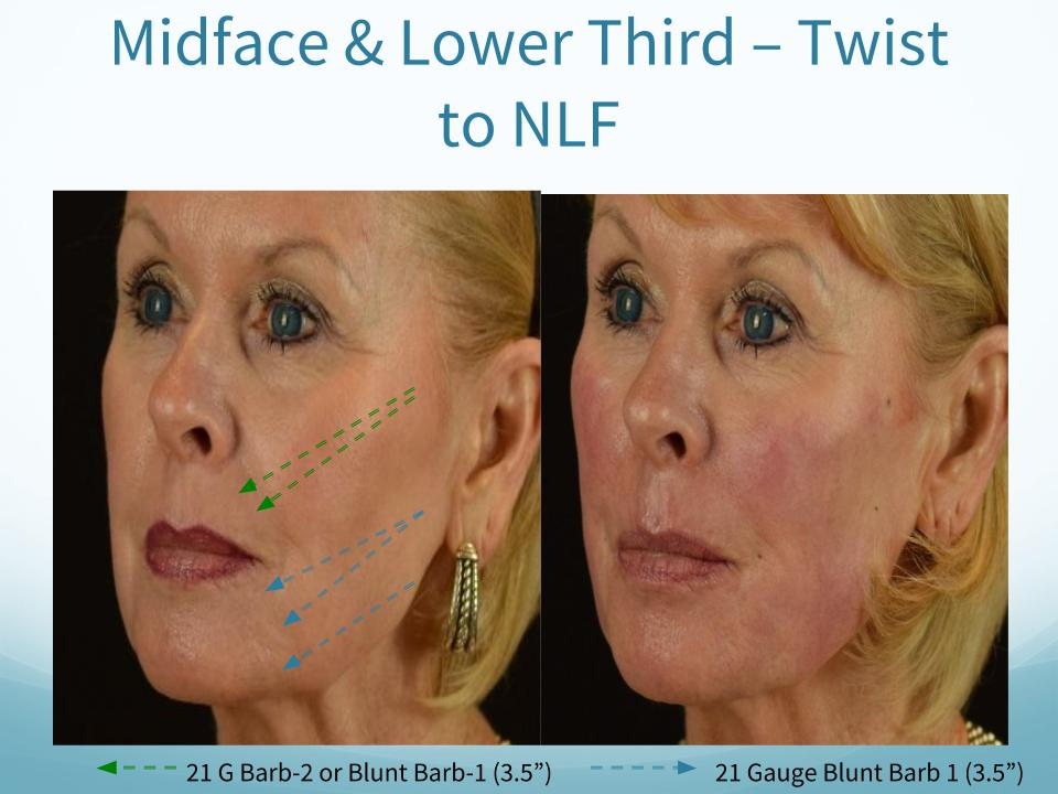 Midface & Lower Third - Twist to NLF