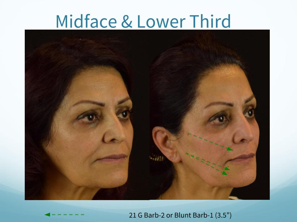 Midface & Lower Third