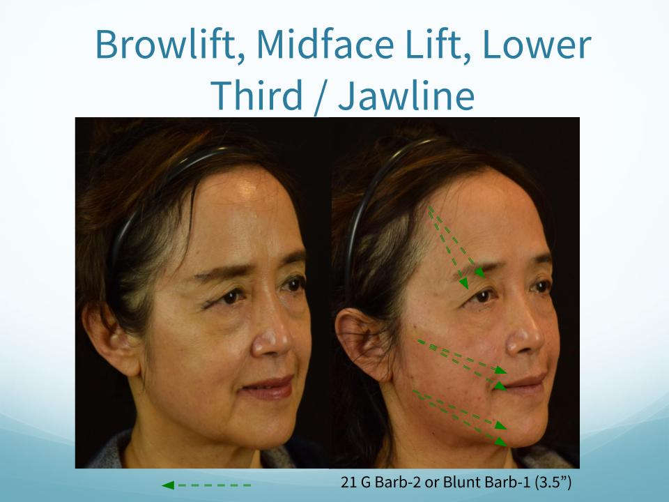 Browlift, Midface Lift, Lower Third / Jawline