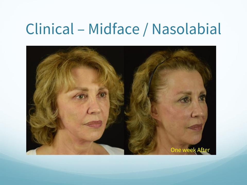 Clinical-Midface / Nasolabial