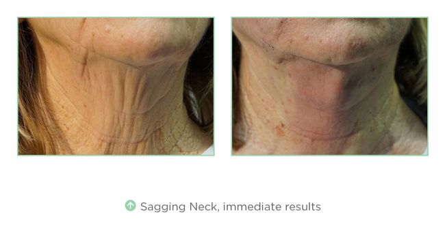 Sagging Neck, immediate results