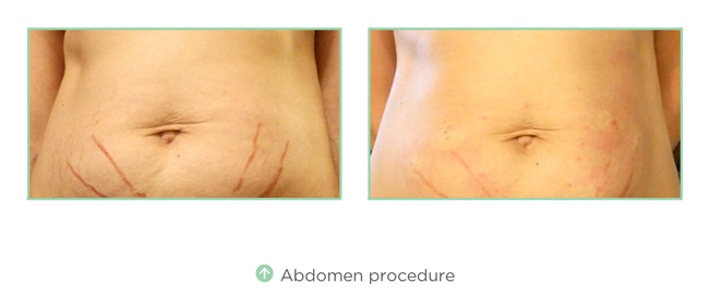 Abdomen Procedure